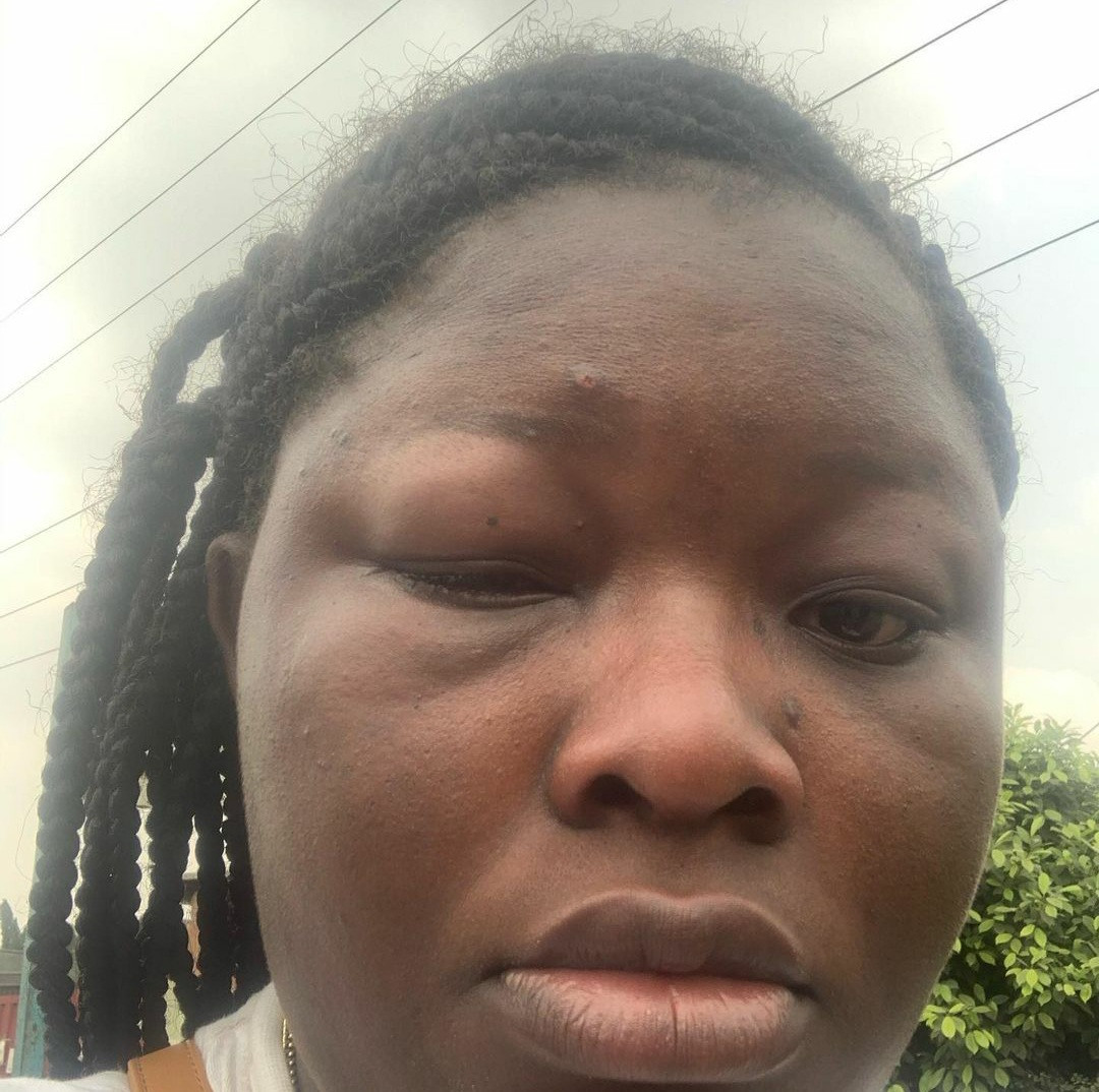 Woman shares injury allegedly inflicted on her by Bolt driver as she accuses him of assaulting her and her sister over 200 Naira