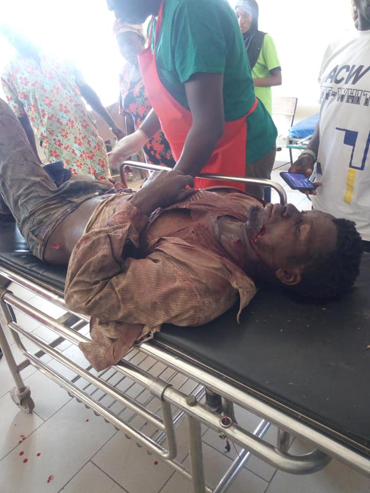 Two farmers brutally attacked by suspected Fulani herdsmen in Taraba after they attempted to stop cows from eating their crops