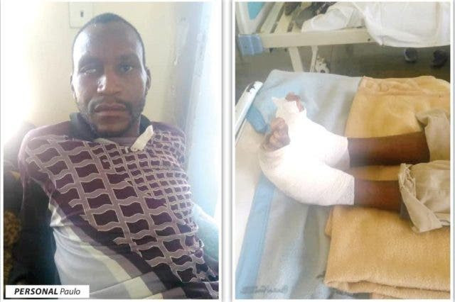 Farm worker tortured with hot charcoal for stealing 4 eggs