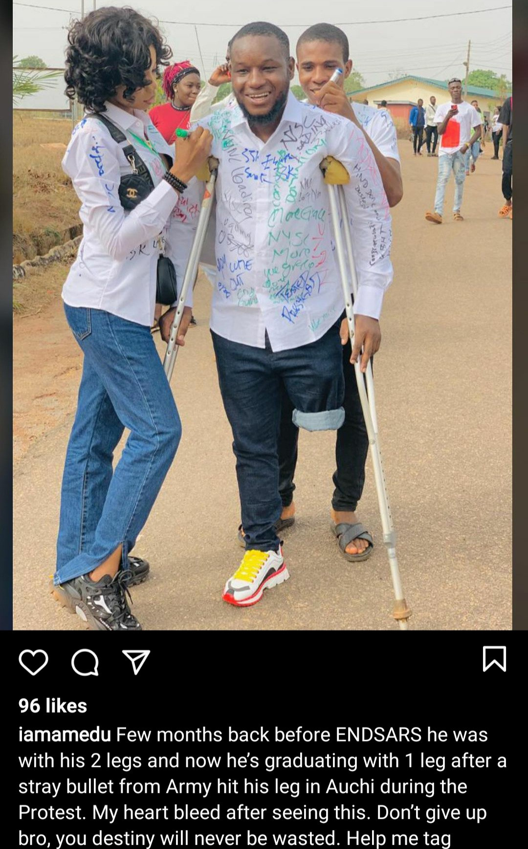Man who lost one leg after stray bullet hit him during the End SARS protest, graduates from University