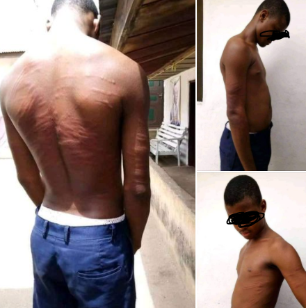 Nigerian man raises alarm after authorities of his former secondary school brutalized a student  (photos)