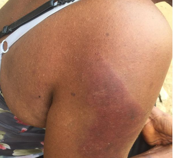 Twitter user shares photos of injury her 58-year-old mother sustained after allegedly being assaulted by a policeman