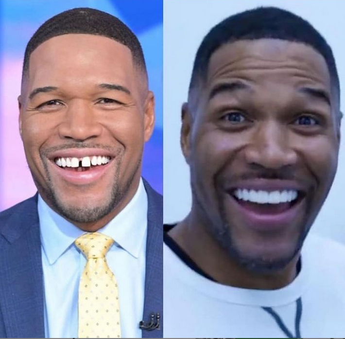 Former NFL player, Michael Strahan closes his signature tooth gap (video)