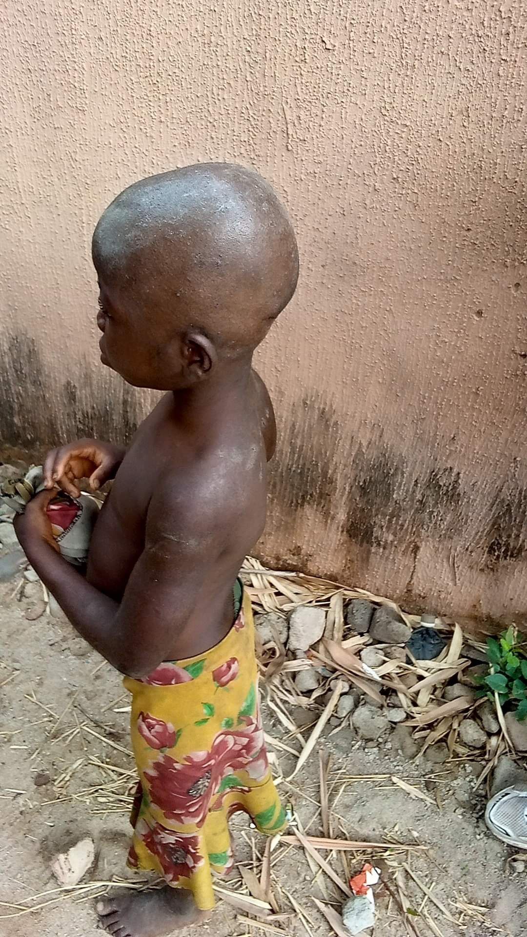 Young maid allegedly brutalised by caregivers after being accused of witchcraft in Anambra