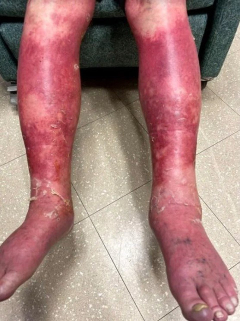 Man whose skin peeled & turned red in rare reaction to covid-19 vaccine still advises people to take it (Photos)