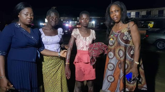 Woman slashes her 13-year-old daughter with razor blade over alleged theft of N1,500 in Bayelsa