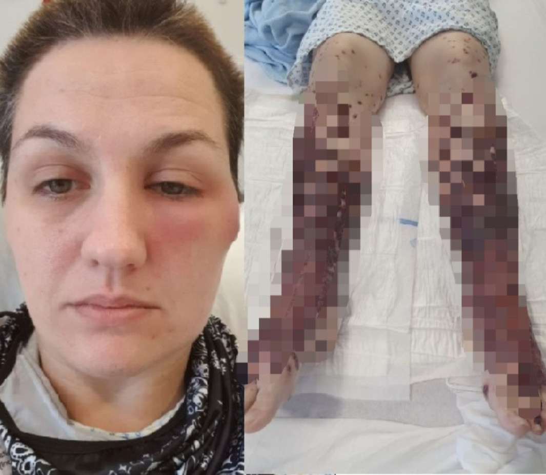 COVID-19 vaccine turned woman's legs into 'giant blisters' and left her in wheelchair