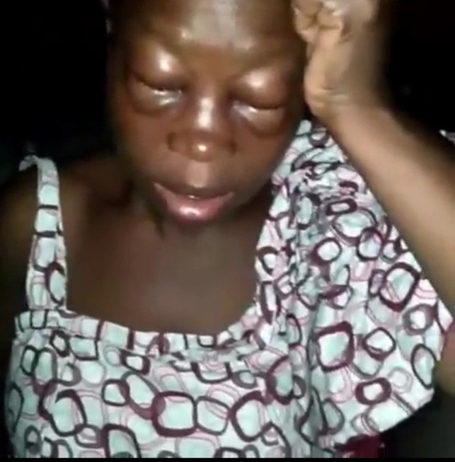 Woman left with swollen eyes after allegedly being beaten by her husband for starting a business (video)