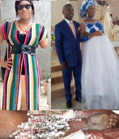 An amputee to married Who is