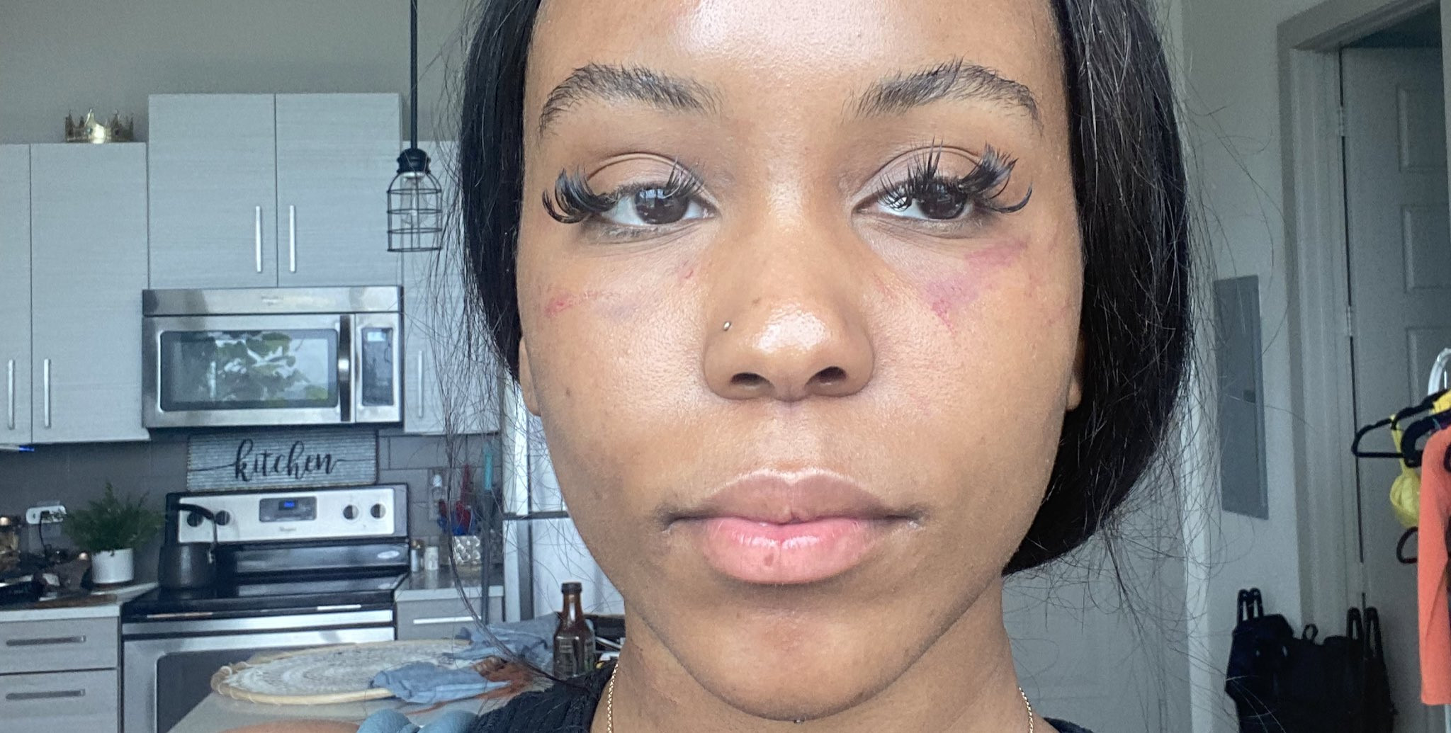 Lady shows off her bruised face and neck after she was physically assaulted by her lesbian partner