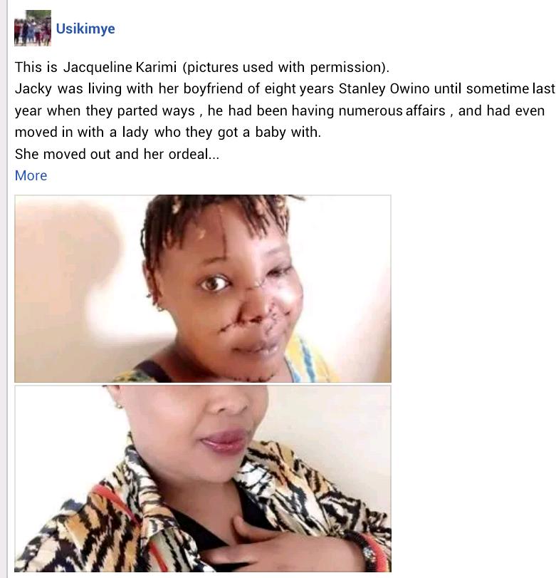 Kenyan man slashes ex-girlfriend