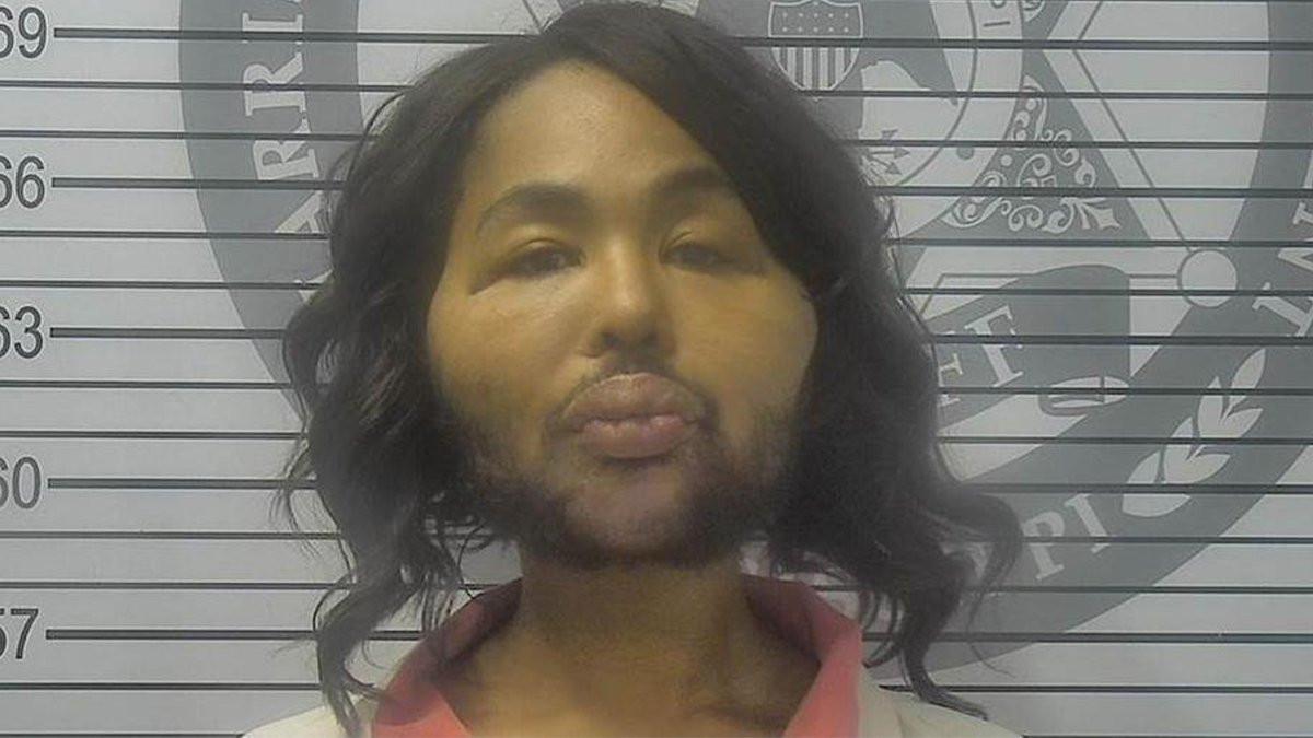 Transgender woman,