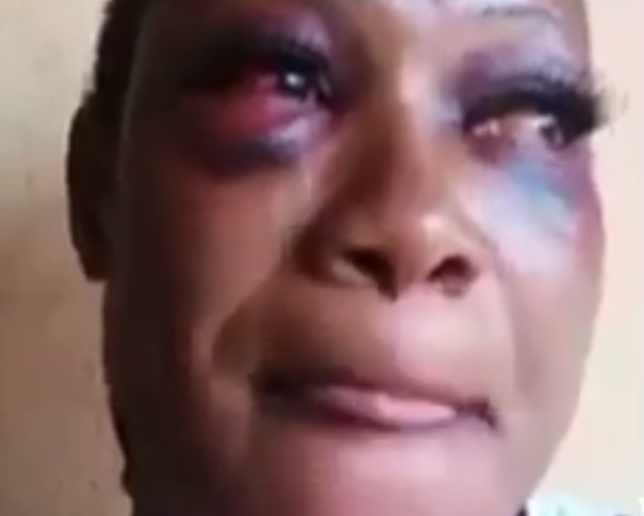 Battered kidnap victim shares her horrific experience in the kidnappers
