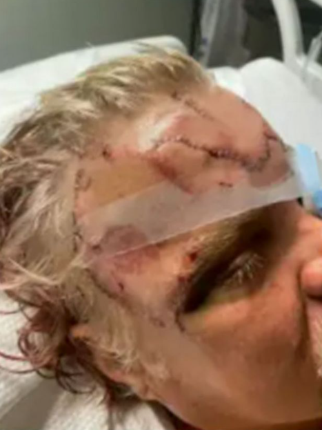 """""""I feel lucky"""" Hiker survives gruesome injuries after bear bites head and totally crushes his jaw (photos)"""
