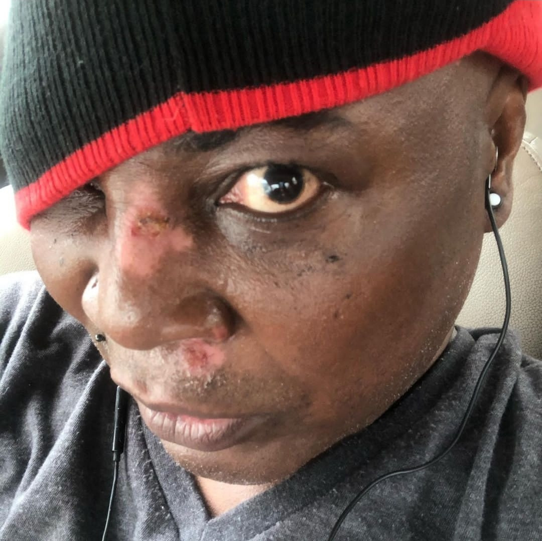 Charly Boy sustains minor injuries on face after falling on his scooter