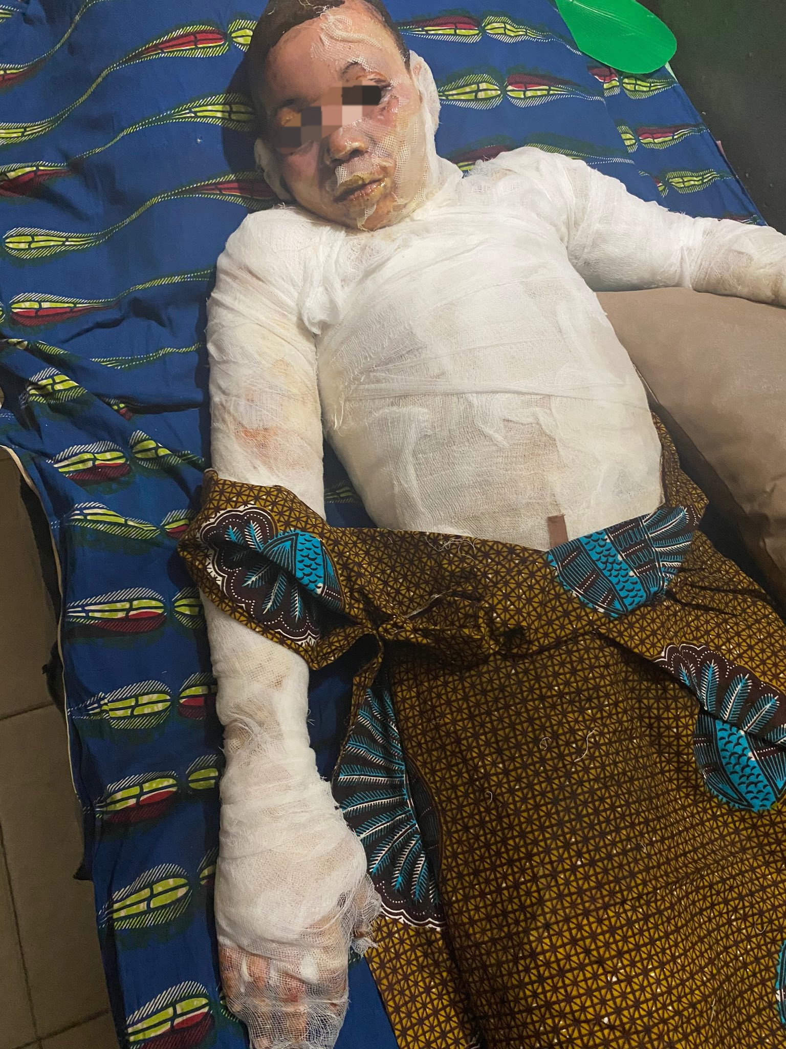 Two brothers suffer severe burns as fire engulfs their family home (graphic photos)