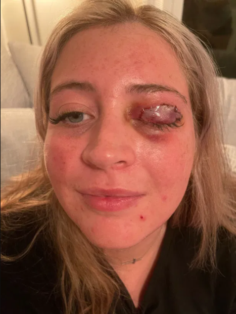 Chihuahua tears off woman