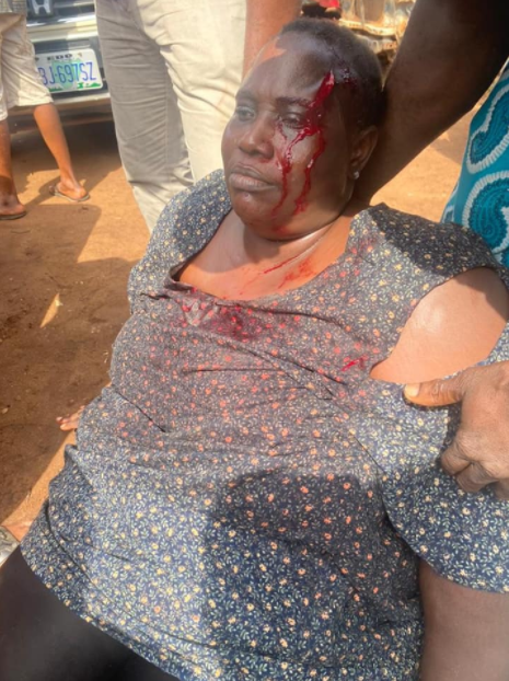 Woman stabs her relative on the head with a broken bottle for shaming her son over not being accepted into the university