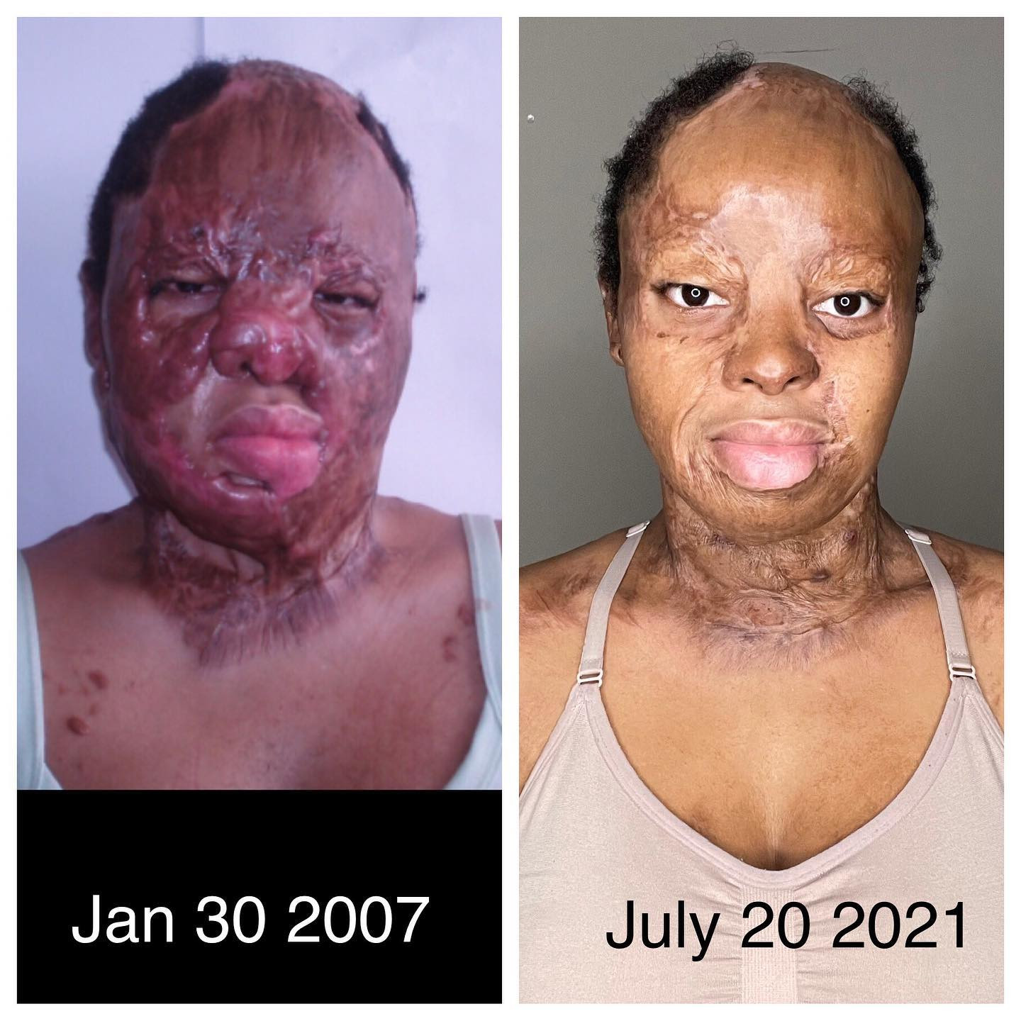 I?m grateful I lived long enough to see it - Plane crash survivor, Kechi Okwuchi bares her facial scars as she shares recovery journey