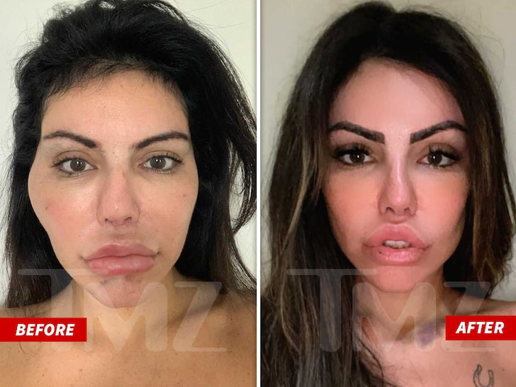 Model Liziane Gutierrez undergoes emergency surgery to remove face filler