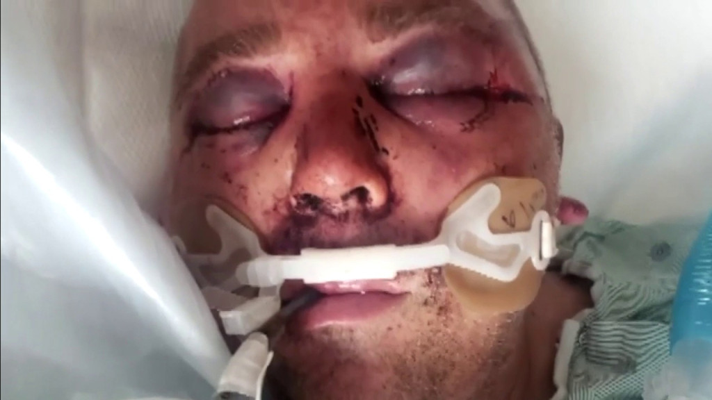 Man left unrecognizable and put in coma after he