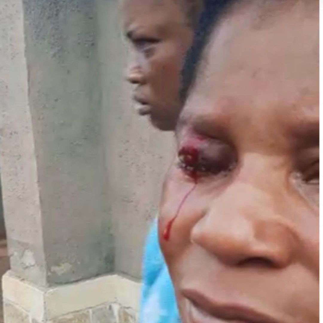 Husband arrested for repeatedly assaulting his wife and leaving her with a bleeding eye in latest attack
