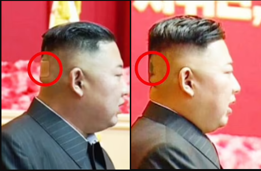 North Korean leader, Kim Jong Un?spotted with plaster on the back of his head and mysterious black spots?in latest health scare (photos)
