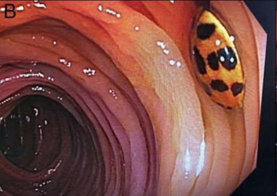 Baffled doctors find live ladybird in man