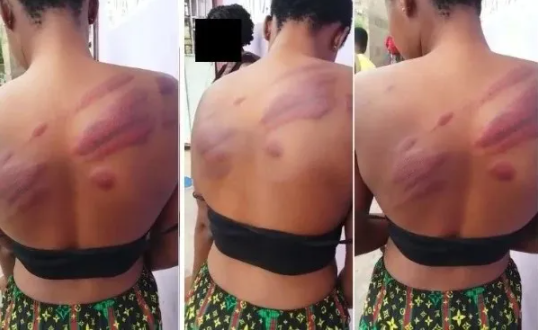 Outrage as headmaster flogs WASSCE candidate, leaving her with bruises