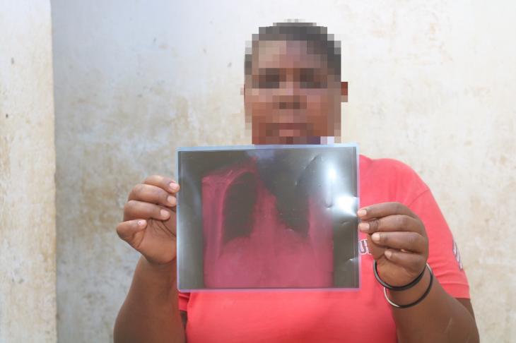 Kenya: Un homme aurait cassé les côtes de sa femme en essayant de l'exciser de force à l'aide d'une pince-Photo