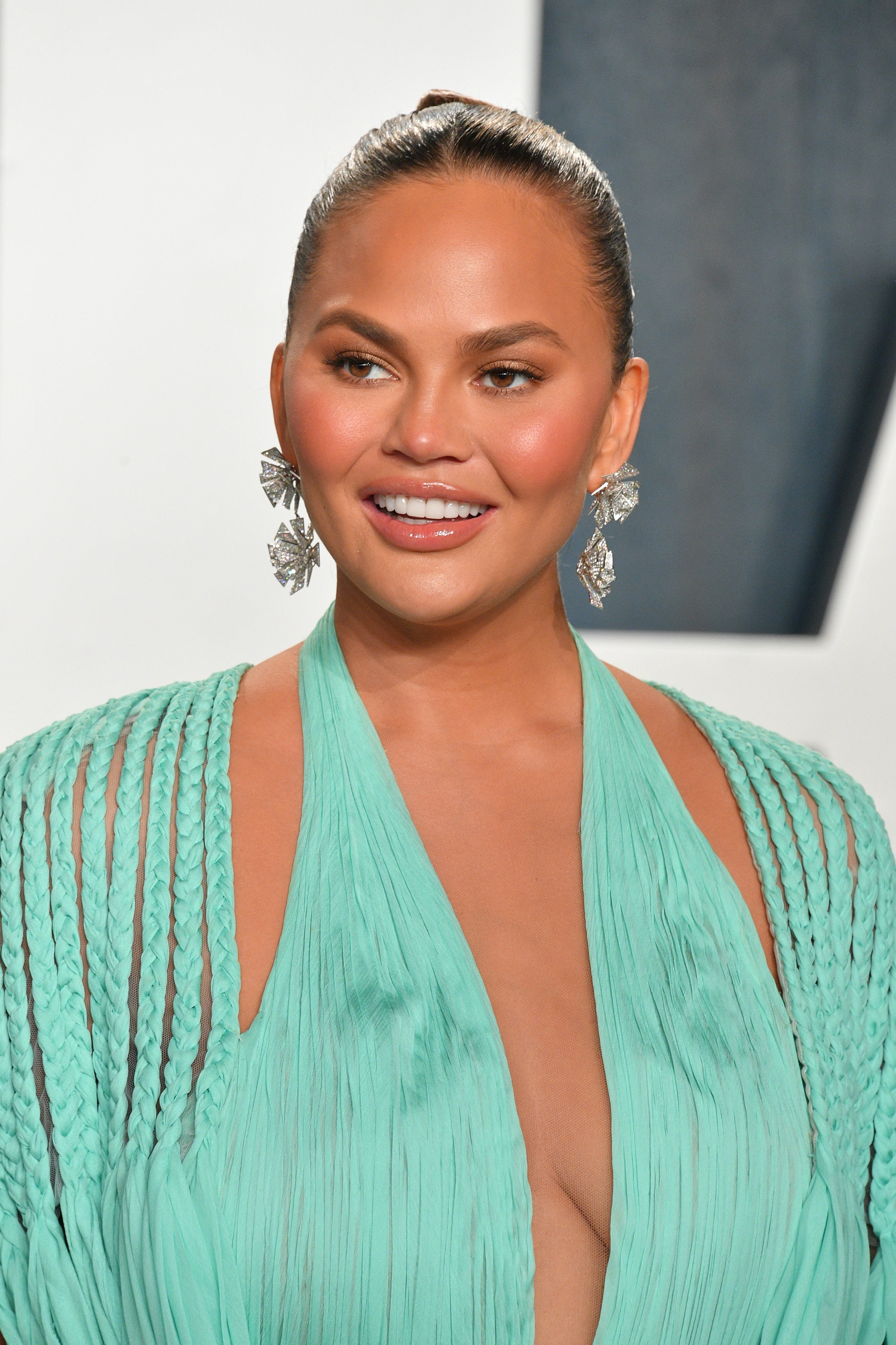 Chrissy Teigen reveals she had fat removed from her cheeks