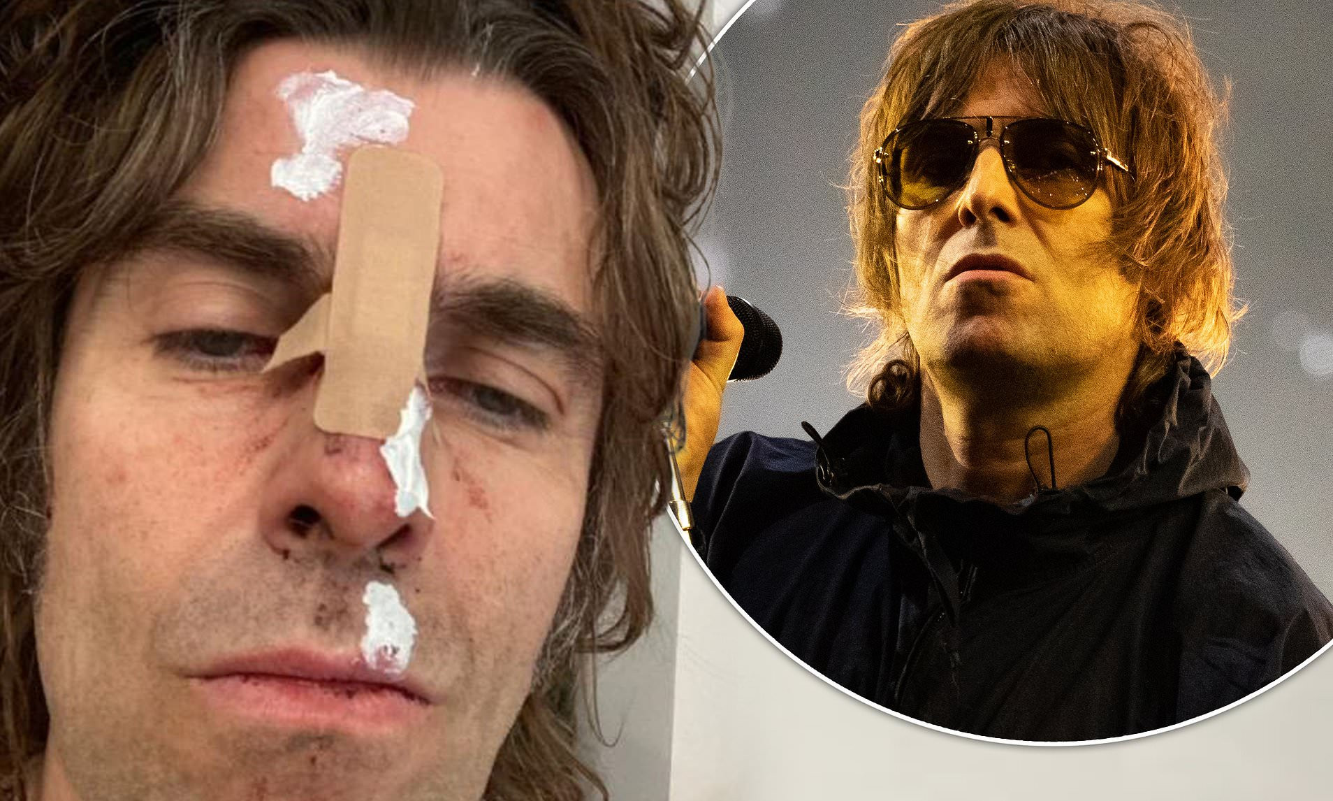 Singer Liam Gallagher suffers face injury after falling off a helicopter