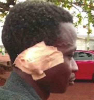 Man bites off friend's ear over weed soup (video)