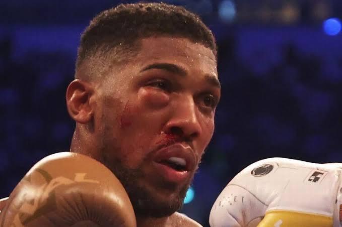 Anthony Joshua rushed to hospital after damaging eye socket (photos)
