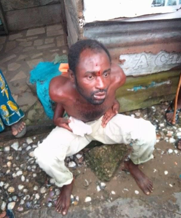 Suspected mentally challenged man allegedly attacks a little girl with hammer in Bayelsa
