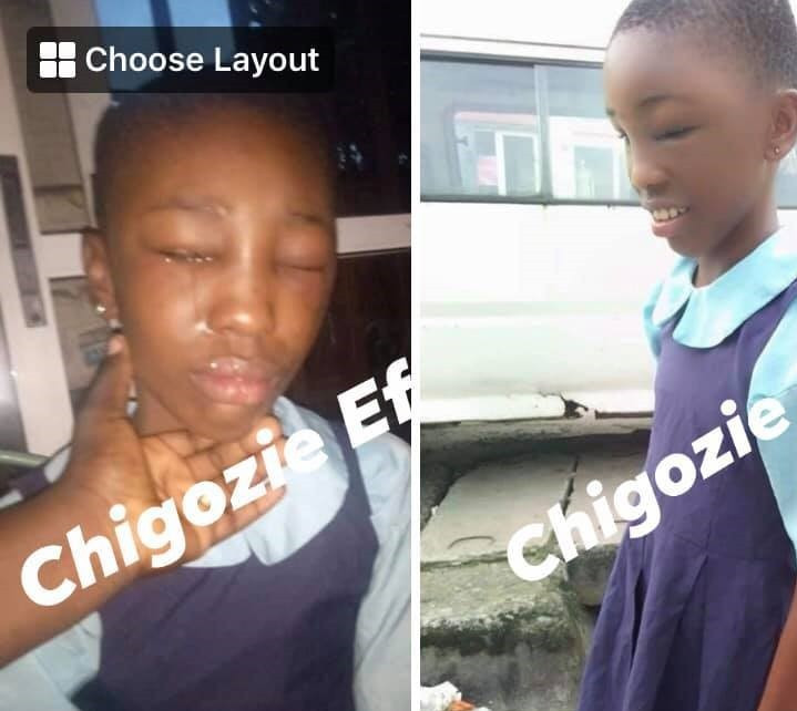 Couple allegedly brutalises minor house help in Port Harcourt