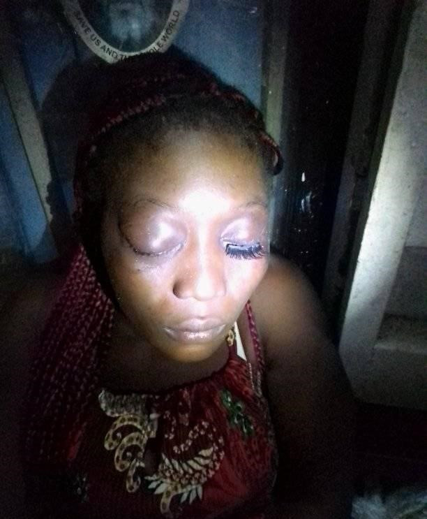 Young woman allegedly brutalised by her boyfriend in Bayelsa
