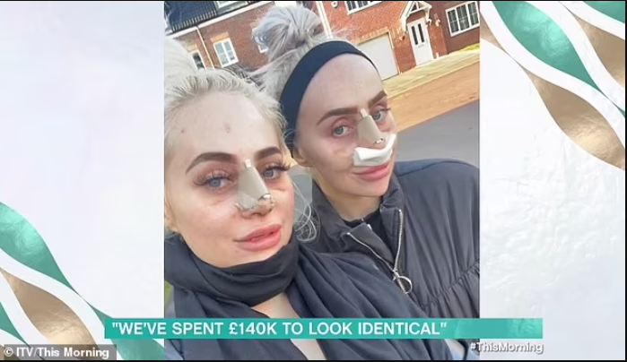 Twin sisters, 25, who have spent ?140,000 on surgery to look identical, reveal they also want to have matching designer vag*nas
