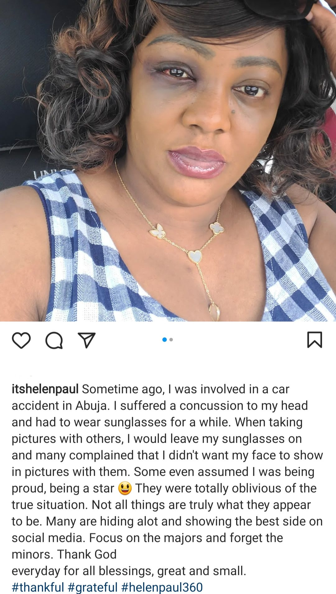 Actress, Helen Paul shares photo of her bruised face as she discloses she was involved in a car accident in Abuja