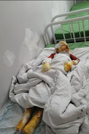 Boy, 4, suffers severe burns in explosion caused by his father who abducted him to get back at his wife for leaving him